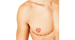 Ftm Top Surgery Costs Price List By Surgeon